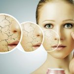 7 Essential Tips For Dry Skin And Its Causes