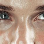 characteristics of combination skin