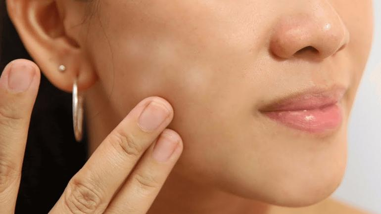 How To Get Rid Of Dry Patches On Face